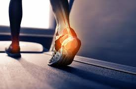 Plantar Fascia Pain Explained