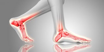 The First Ray – Controlling the Structural Integrity of the Foot